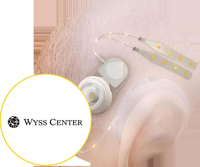 wyss center epios case study details